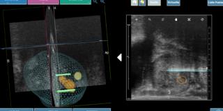 Cancer de la prostate : première utilisation au monde de la technique d'ablation tumorale Nanoknife® guidée en imagerie embarquée 3D en ambulatoire